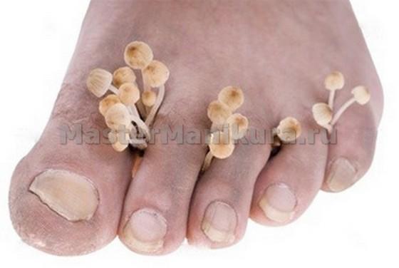 Грибок ногтей пальцев ног