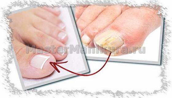 Как грибок повреждает здоровые ногти