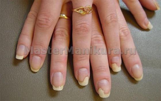 Споры грибков на ногтях