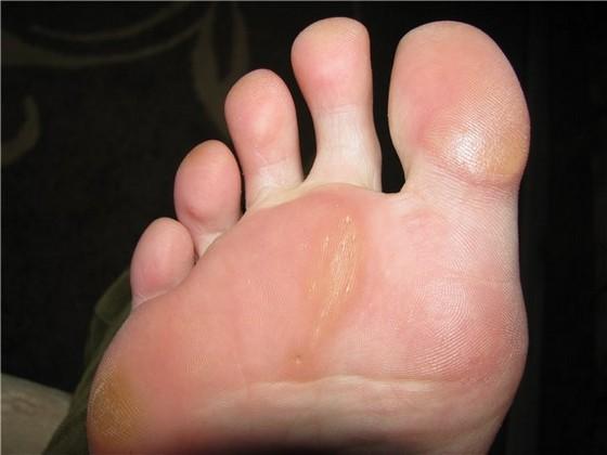 Сухие мозоли на ступне ноги