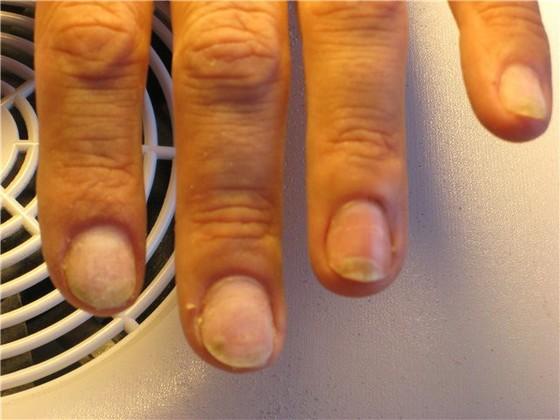 Грибок на ногтях: косметический дефект или серьезная медицинская проблема?