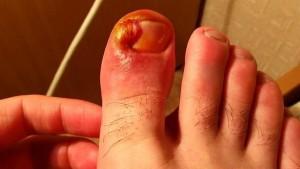 Проблема врастающих ногтей на ногах – правила лечения и профилактики