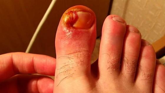 Средство от грибка на ногах быстро