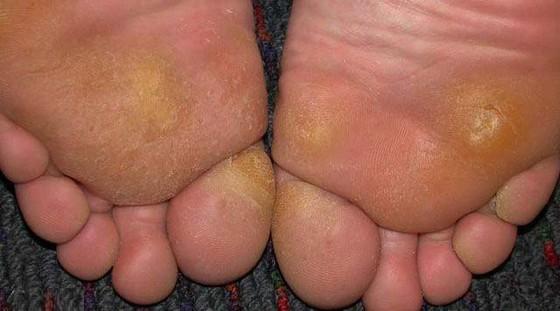 Подошвенные мозоли на ногах