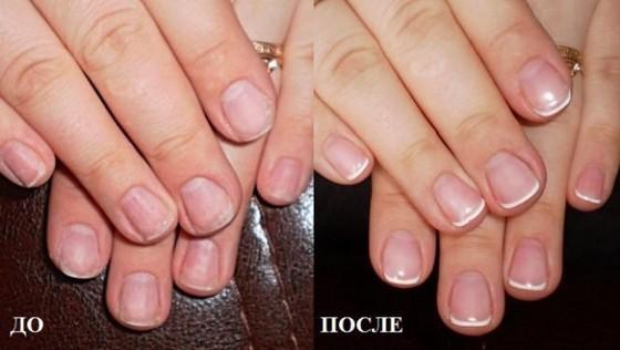 Результат укрепления ногтей