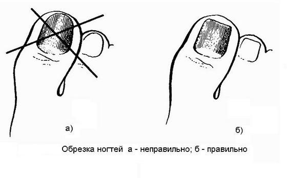 Правильно подстрижены ногти