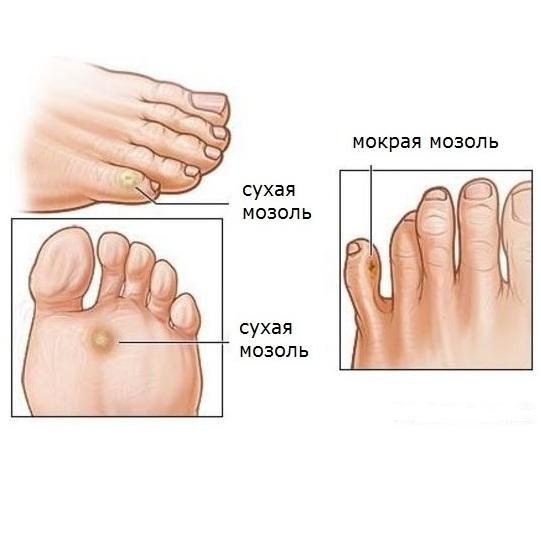 Сухие и мокрые мозоли на ногах
