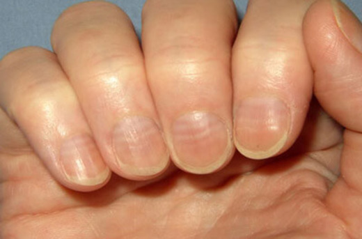 Деформация ногтя от недостатка кислорода