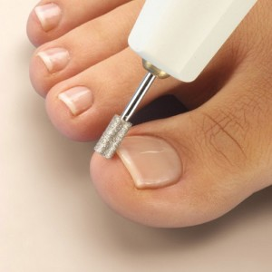Корректировка ногтя при аппаратном педикюре