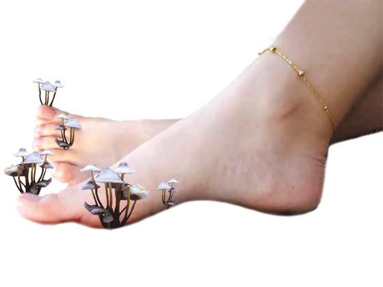 Признаки грибка ногтей