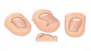 Как развивается врастание ногтей