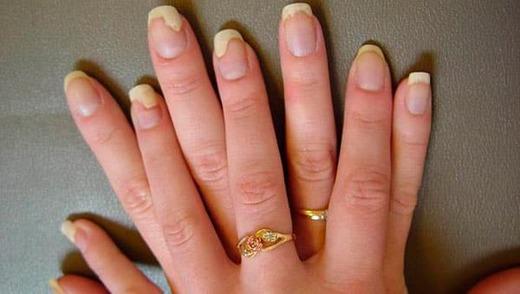 Ногти больные грибком