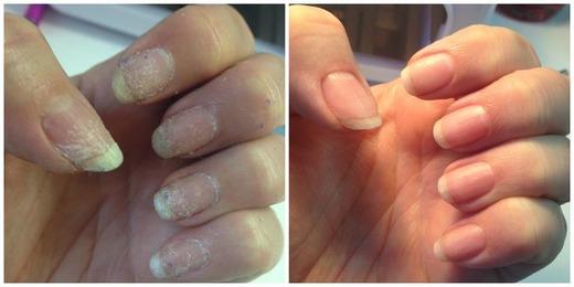 IBX system залечивает повредившиеся ногти